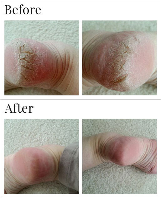 Cracked heels before and after Dr. Canuso's treatment