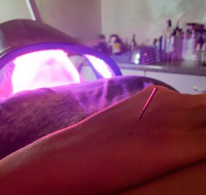 Acupuncture and Celluma Light Therapy